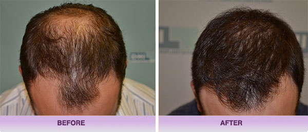 PRP Hair Restoration (Platelet-Rich Plasma)